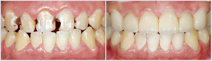 prima e dopo trattamento