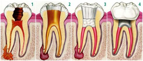 endodonzia, trattamento canali